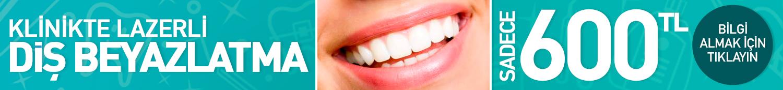 Diş Beyazlatma Head Banner