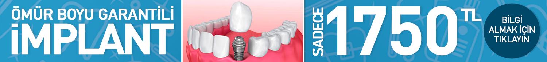 Diş İmplant Head Banner