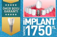 ESENYURT İMPLANT TEDAVİSİ